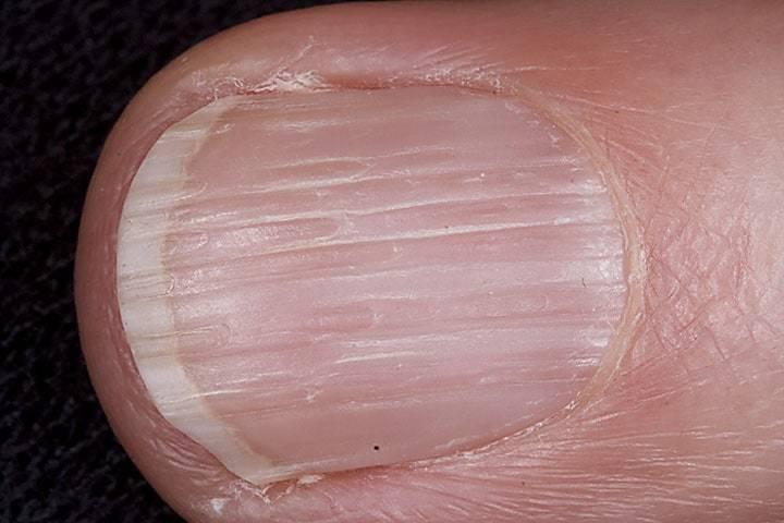 ongles striés causes traitement 2