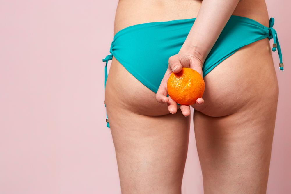 cellulite localisée fesses et cuisses